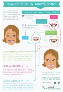 Invisible brace infographic