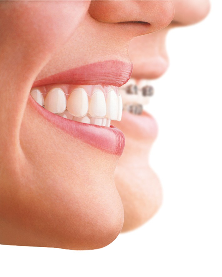 Invisalign Sussex & Kent | Invisible Braces | Total ...