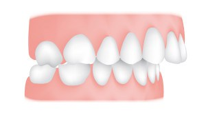 Overjet malocclusion