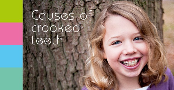 Crooked teeth image