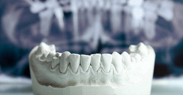 Six things you need to know about orthodontics