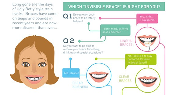 Which invisible brace is right for you?