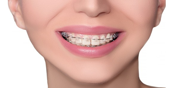 Perfect Teeth Alignment