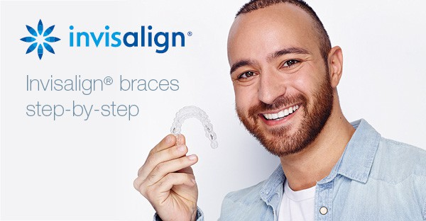 Invisalign braces step-by-step