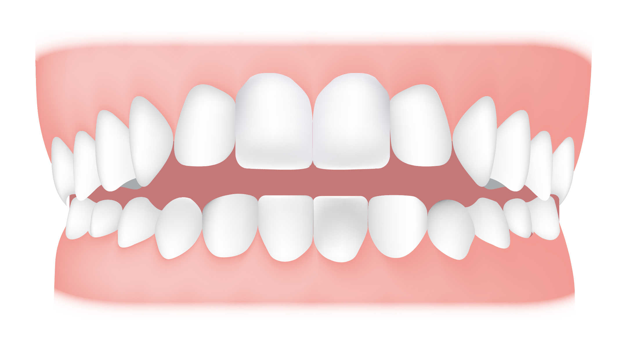 Different Types of Malocclusions   Total Orthodontics