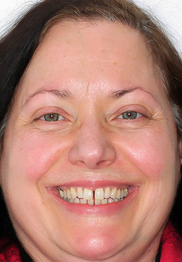 Braces Before and After | Total Orthodontics