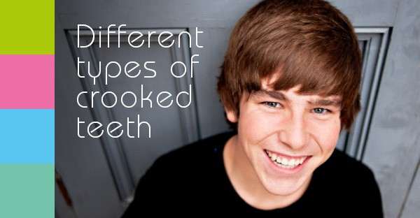 Different types of crooked teeth